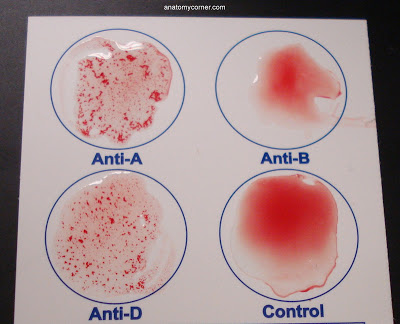 A Blood Typing Mystery Downhousesoftware