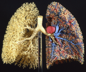 Airways preserved in the right lung, airways and pulmonary circulation in the left lung.