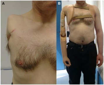 a-myoelectric-prosthesis-implanted-after-shoulder-disarticulation-a-2-dofs-self-powered
